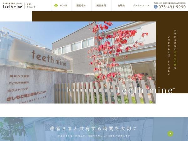 Screenshot of www.teethmine.com