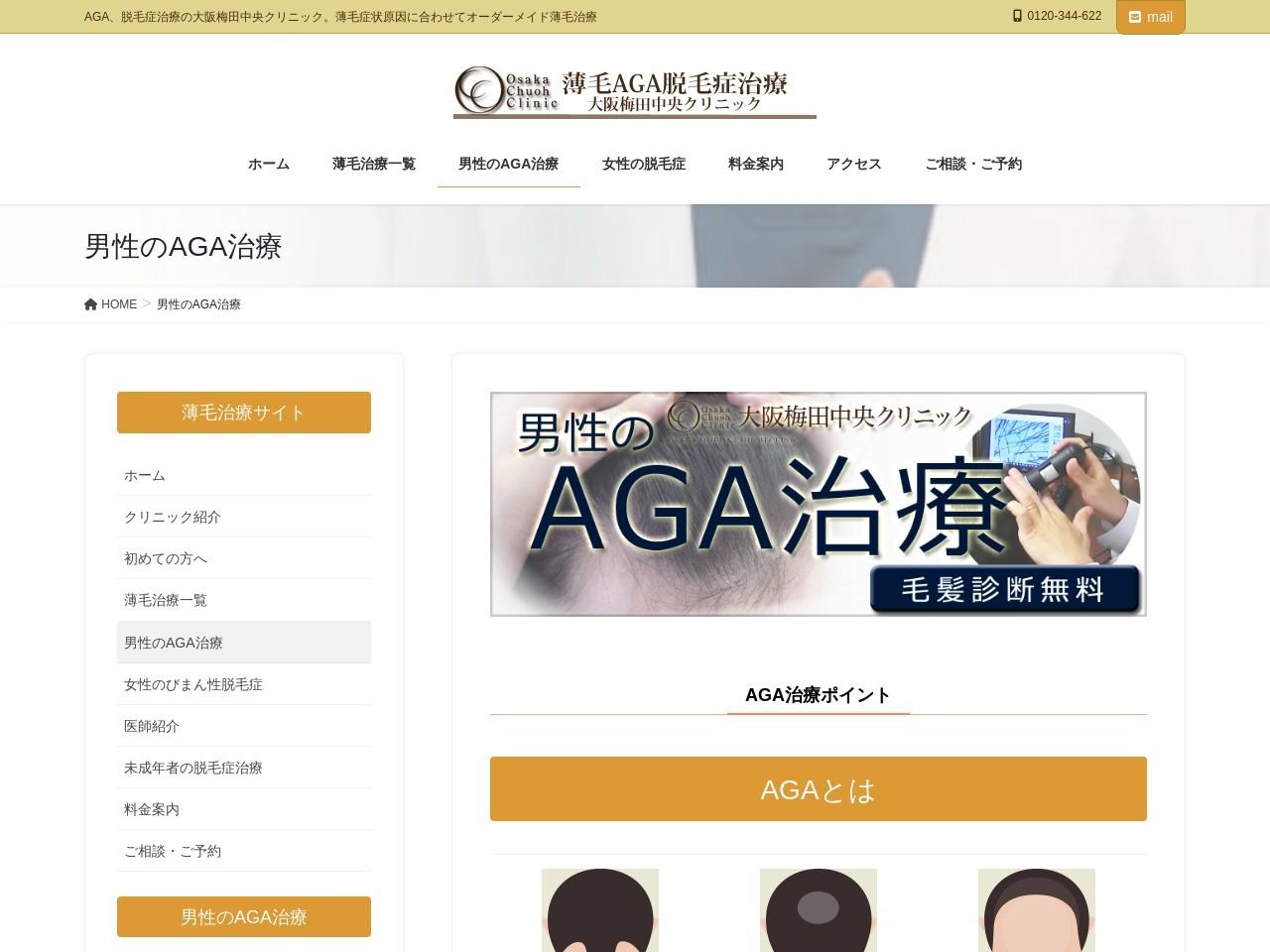 男性のAGA治療 女性の脱毛症
